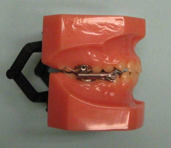Orthodontic Appliances Dr Gulland Orthodontics Hermitage PA