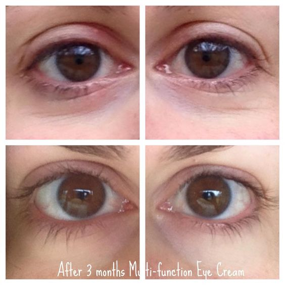 """Renee was """"honestly shocked to see such a difference """" after 3 months of Rodan + Fields Multifunction Eye Cream!"""