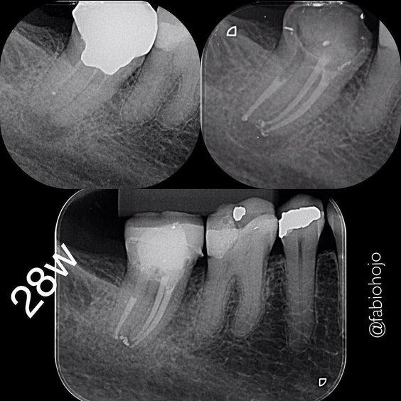 #endodontic#dentista #endodontia #endodontictreatment #endodontics #dentistry #durr #microsonics #microscope #dentist #endogroup #odontolove #canal #odontology #odonto #reciproc #vdw #rootcanaltreatment #rootcanal #rootcanals by fabiohojo Our General Dentistry Page: http://www.lagunavistadental.com/services/general-dentistry/ Google My Business: https://plus.google.com/LagunaVistaDentalElkGrove/about Our Yelp Page: http://www.yelp.com/biz/fenton-krystle-dds-laguna-vista-dental-elk-grove-3…