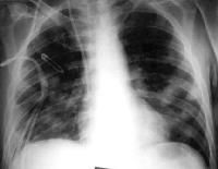 Cough is usually nonproductive in fungal pneumonia.