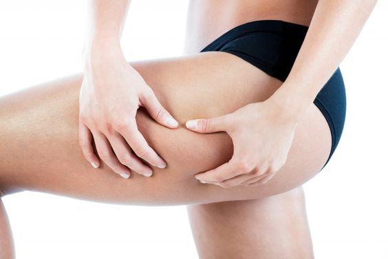 Eine Übersäuerung des Körpers begünstigt die Entstehung von Cellulite. Bild: Photographee.eu - fotolia