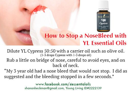how to stop a nosebleed with a penny