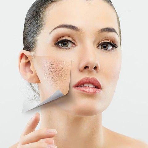 Bật mí cách trị da khô nứt nẻ hiệu quả sau 7 ngày