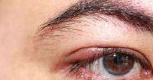 لا تتجاهل اضطراب حركة جفن العين لهذا السبب صحة طب