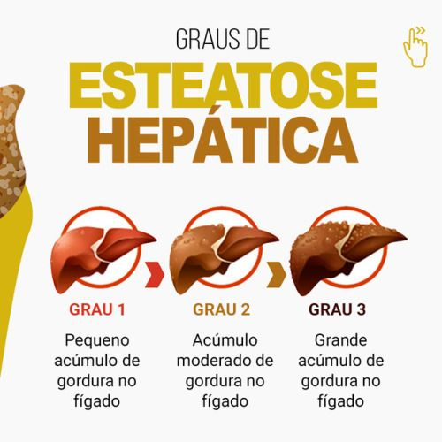 steatoza hepatica gradul 3 tratament)