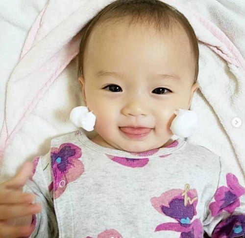 乳児 湿疹 顔