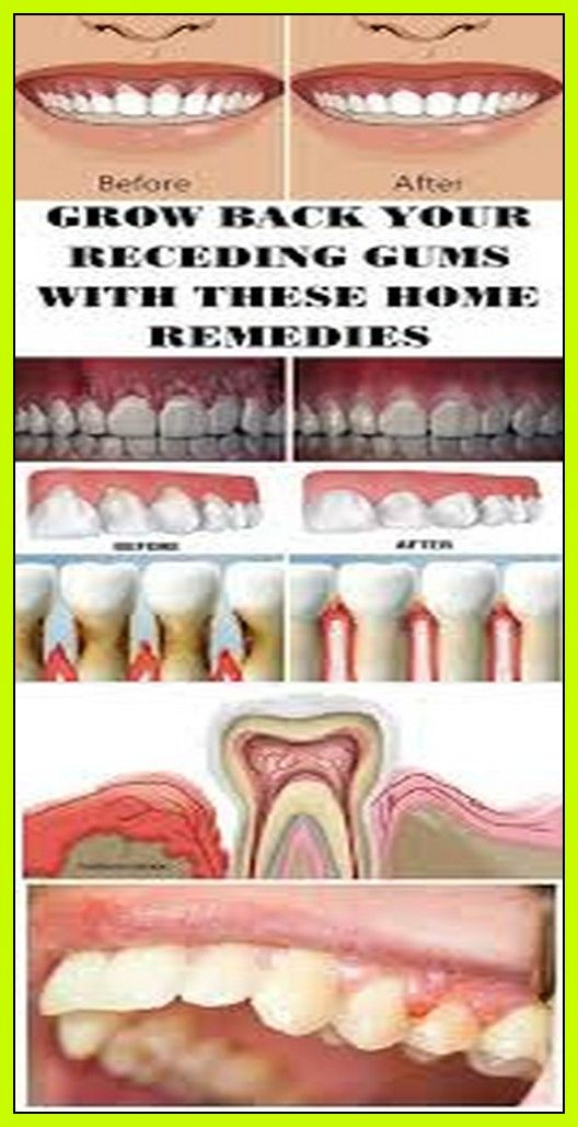 How To Get Plaque Off Back Of Teeth At Home