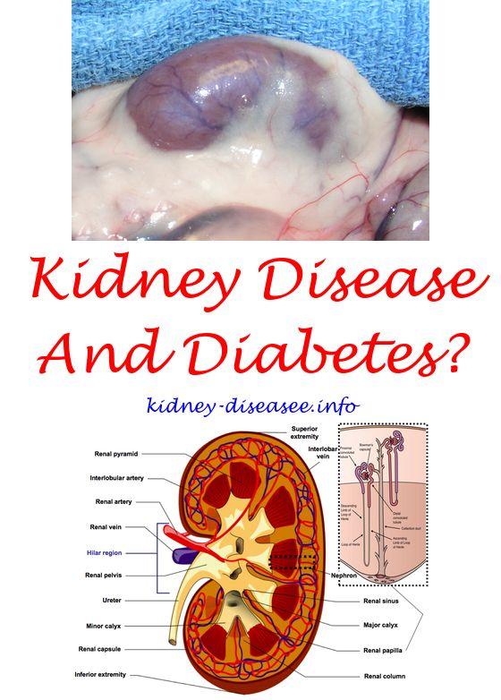 Pin On Kidney Dialysis