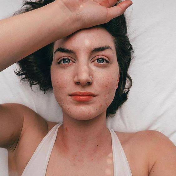 12 hình ảnh thật nhất về những làn da đang chịu sự hoành hành của mụn #LàmĐẹp