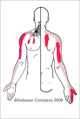 Scalenus Anterior Scalenus Medius - scalene muscles may experience pain in any of the areas shown in red, but frequently cause a person to experience shoulder and upper limb syndromes.
