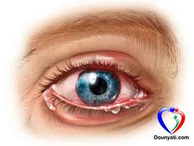 دنيتي اسباب التهاب قزحية العين وعلاجها