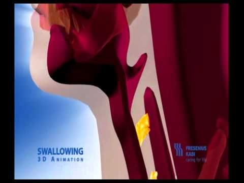 Animation of abnormal swallow, good for education.