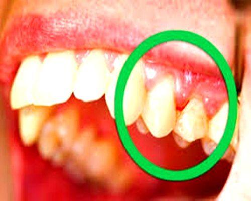ادوية علاج التهاب اللثة تعتبر التهابات اللثة من اكثر المشاكل ضروارة التى تصيب الفم وتنتج عن تراكمات للبكتير Tooth Infection Loose Tooth Gum Disease Treatment