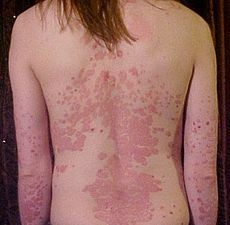 Relieving Psoriasis Symptoms | Is Psoriasis Contagious