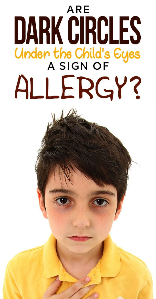 Is It True That Dark Circle S Under My Child S Eyes Could Be A Sign Of Allergies Dark Circles Dark Eye Circles Dark Circles Treatment
