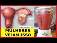 Remedios Caseros Como Eliminar Quistes En Los Ovarios En 12 Horas Pin Em Saglik Kadin Ozel