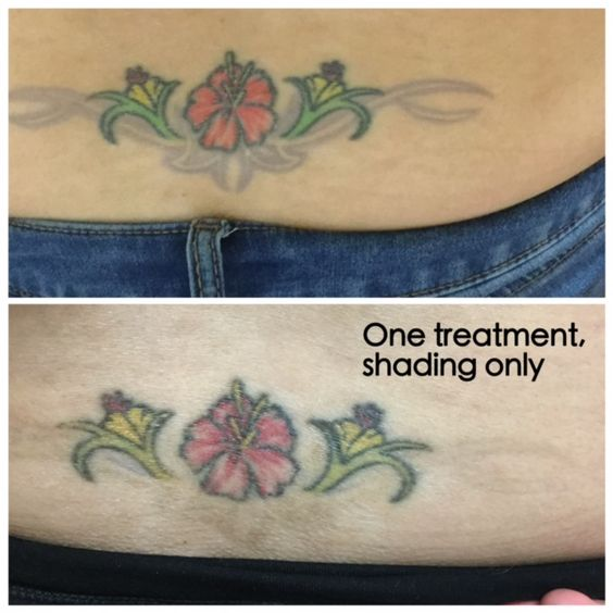 #absolutetatremoval #lasertattooremoval #sandiegotattooremoval