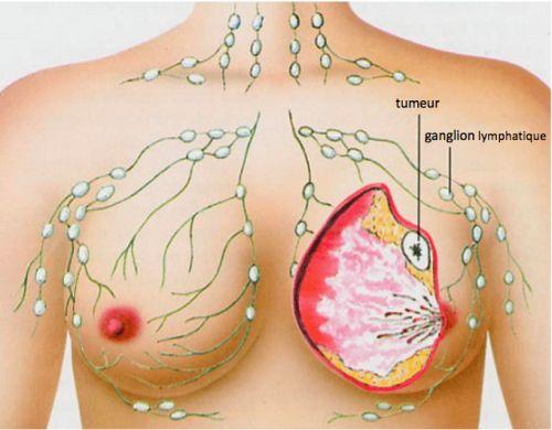 Les 5 types de cancers les plus fréquents chez les femmes.   Les cancers du sein, du colon, de l'utérus et du poumon sont les plus fréquents chez la femme. Bien que le cancer du sein soit le plus commun, il est celui qui présente le plus faible taux de mortalité.