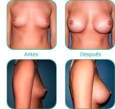 Resultado de imagen para cirugia aumento gluteos