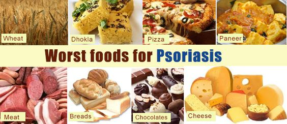 If you're battling psoriasis, incorporate more of these foods into your diet to prevent your next flare-up 1