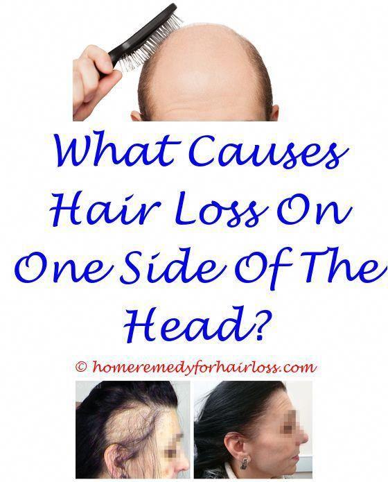 Hair Loss Results Ariana Granda Hair Loss Shampoo Causing Cat Hair Loss Hair Loss Boston Hair Loss On Dog Anti Hair Loss Help Hair Loss What Causes Hair Loss