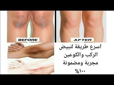 Pin By يوميات بنات On Skin Care Skin Care Skin Abs