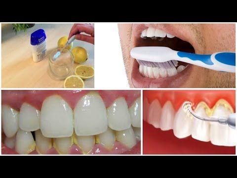 Enjuaga tu boca por 1 minuto con esta mezcla y elimina el sarro y la placa acumulada de tus dientes. - YouTube