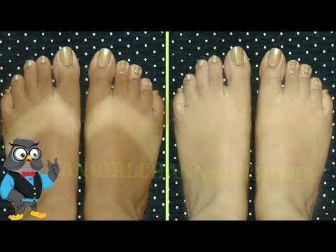 como aclarar la piel de los pies rapidamente