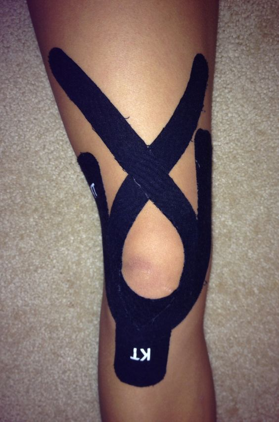Gallery For > Patellofemoral Pain Syndrome Taping