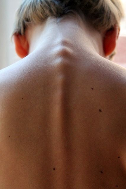 Diagnosing the Kink in My Neck with its Causes and Treatment
