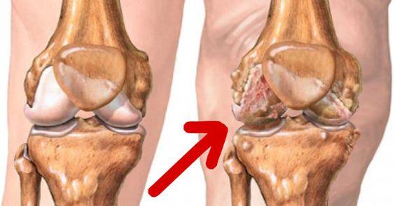 A cartilagem é um tecido flexível presente em diversas partes do nosso corpo que revestem a superfície dos ossos, especialmente próximo das articulações. No nosso dia a dia, as cartilagens que mais freqüentemente sofrem danos
