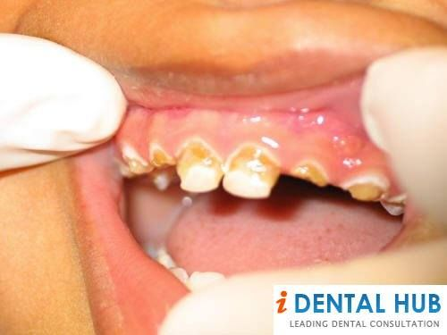 gum disease speech What is gingivitis symptoms, causes, and treatments recommended 46 times recommend this gingivitis is a form of gum disease that happens when plaque.