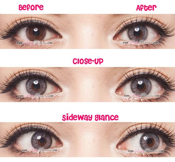 GBT Grey Circle Lenses Before After