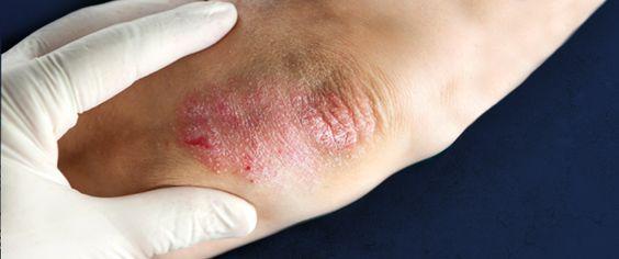 Las vacunas de la psoriasis