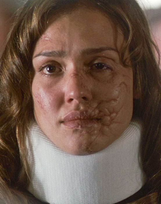 various facial scars from recent movies | facial scarring ...