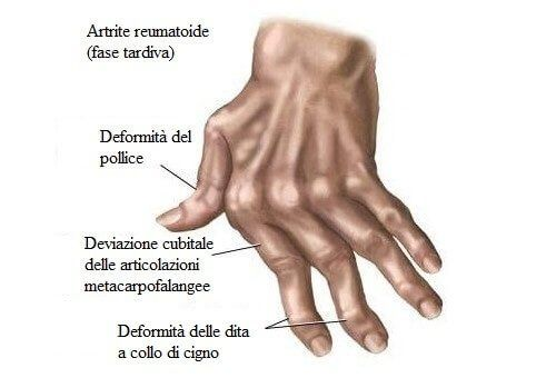 Reumatismi, i rimedi naturali