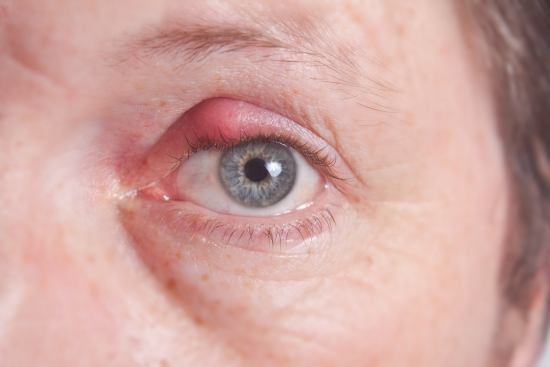 Hey you may find this interesting Styes: Causes and Remedies. Read more on https://www.organicfacts.net/home-remedies/styes.html
