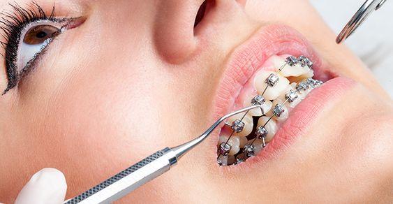 COMO O APARELHO ORTODÔNTICO AGE ~ Ortodontia em Brasília
