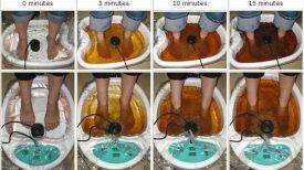 Comment détoxifier votre corps par les pieds en 30 minutes…Ce bain fait des merveilles !