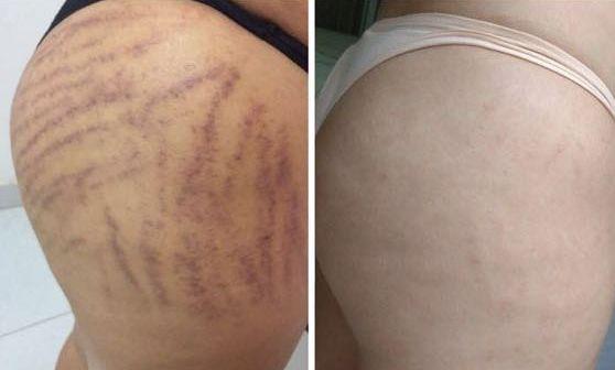 As estrias brancas ou vermelhas podem surgir, tanto em mulheres como em homens também, em diferentes regiões do corpo que v… | Tattoo quotes, How to remove, Tattoos