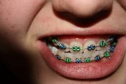 Cute Braces Colors Combinations For Girls | www.pixshark ...