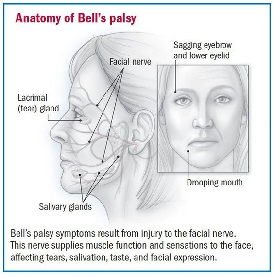 how to heal bell's palsy