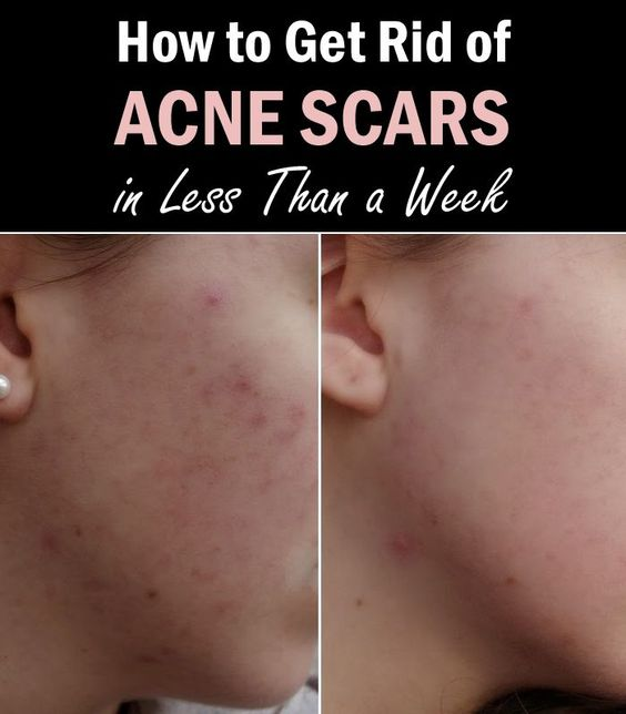 How to get rid of acne scars in less than a week remedies how to get rid of acne scars in less than a week remedies makeup and face ccuart Image collections