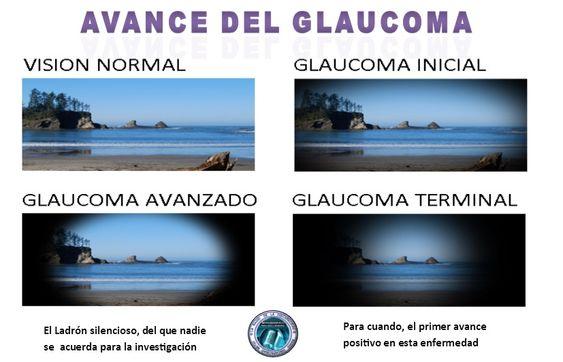 Glaucoma El Ladrón silencioso