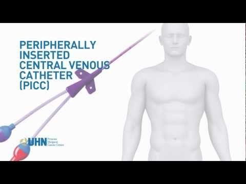 Observation: PICC (Peripherally Inserted Central Venous Catheter)