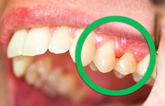 يكون الفم عادةً موطنًا للبكتيريا وهذا يجلب الأمراض والتسوّس والالتهابات بسرعة. وبالمناسبة التهاب اللثّة شائع جدًا وللأسف يترافق أحيانًا مع