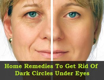 Home remedies, Dark circles under eyes and Remedies on ...