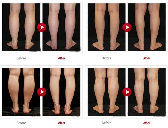 Liposuction, Short skirts and Aesthetics on Pinterest