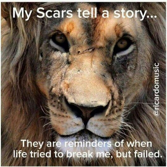 We all have scars.. Some physical, and some emotional... But they are all proof that we have a purpose, and we are stronger than we think