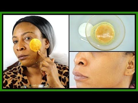 e5bf35e5b64fcbe1c2d916381575b3b6 - How To Get Rid Of Acne Scars And Hyperpigmentation Naturally